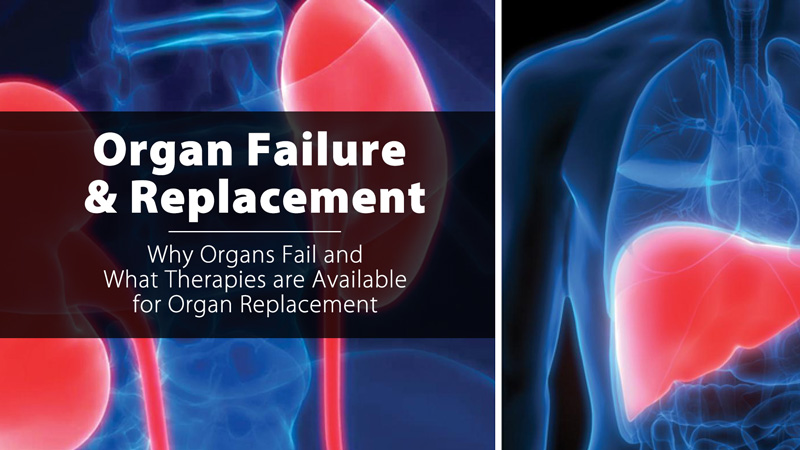 Organ Failure and Replacement: Why Organs Fail and What Therapies are Available for Organ Replacement