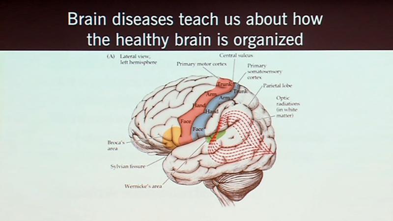 neurology | UCTV Blog